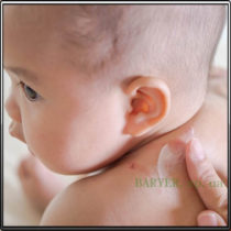 укусы клопа на теле ребенка